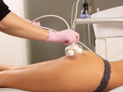 Lymfatická masáž baňkami